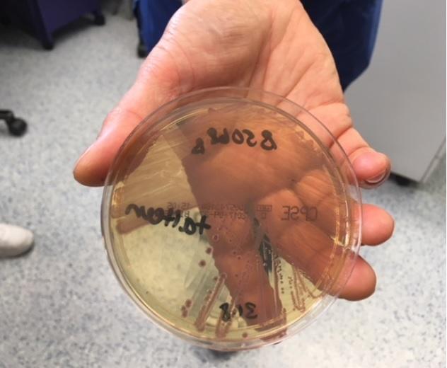 Biologilärarna vid Vaasan Lyseon Lukio och Vasa gymnasium besökte Vasa Centralsjukhus (VCS) mikrobiologiska laboratorium